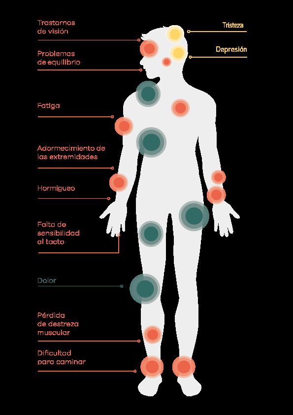 Síntomas de la Esclerosis Múltiple. Fuente: Fundación Esclerosis Múltiple